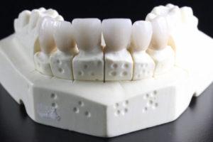 歯の模型3